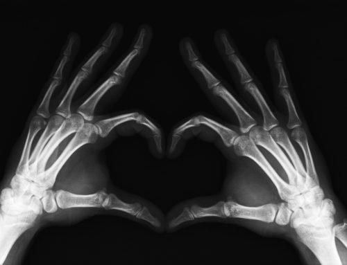 Les maladies osseuses