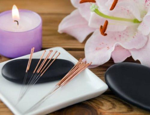 Remboursement acupuncture : Tout ce que vous devez savoir !