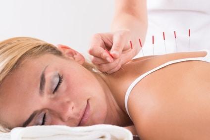 seance massage acupuncture